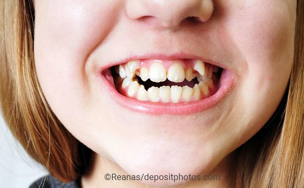 Schiefe Zähne